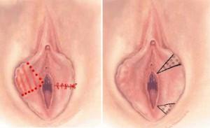 gynécologue-la marsa-Tunis-Tunisie-hyménoplastie-reconstruction hymen-virginité-grossesse-hyménorraphie-chirurgie esthétique-chirurgie intime-hyménoplastie Tunisie-nymphoplastie-grossesse-fécondation in vitro-FIV-PMA-ICSI-procréation médicalement assistée-stérilité-infertilité-azoospermie-chirurgien de l'hymen-hymenoplastie-réparation de l'hymen-réfection de l'hymen-restauration virginité